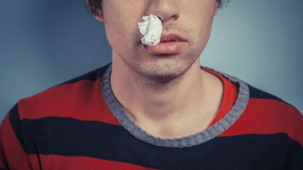 Alasan Kenapa Kadang Hidung Kita Bisa Mimisan