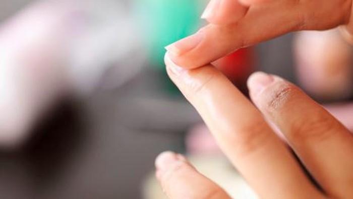 Kuku yang pucat adalah pertanda tubuh kekurangan nutrisi, salah satunya kurangnya zat besi atau anemia. Kuku pucat juga bisa dikarenakan adanya masalah pada hati. (Foto: Getty Images)