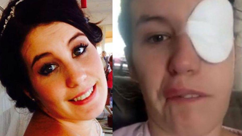 Mirip Stroke, Wajah Wanita Ini Terus-terusan Lumpuh karena Kondisi Langka