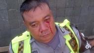 Kena Pukul Pendemo di HI, Wajah Anggota Polres Jakpus Bercucuran Darah