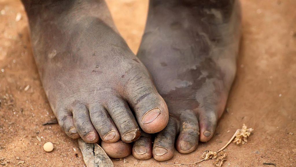 110 Orang Meninggal karena Kelaparan dan Diare di Somalia