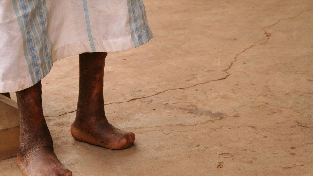 Gowa Siap Jadi Percontohan Penanganan Penyakit Kusta