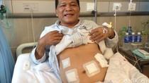 Cerita Pasien Diabetes Asal Indonesia Jalani Bypass Lambung di China