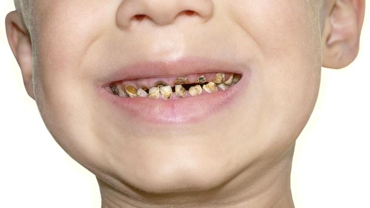 Anak Rajin Gosok Gigi, Tapi Kok Giginya Gampang Berlubang?