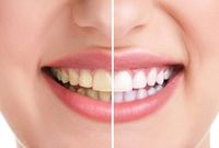 Gigi putih alami dengan arang aktif.