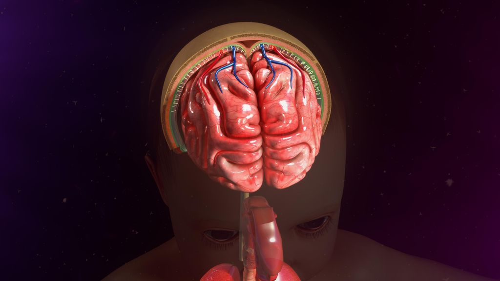 Sering Lumpuh dan Nyeri Kepala Sebelah? Awas Aneurisma Otak