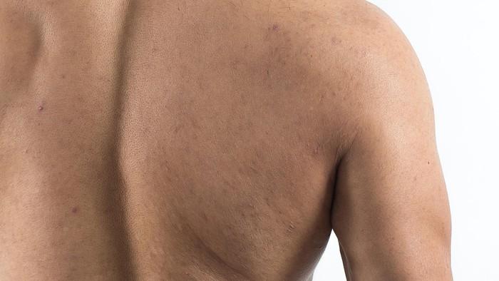 Walaupun tak terlihat, jerawat di punggung benar-benar mengganggu. Jika ini terjadi, Anda harus mencari tahu penyebabnya agar tak berulang. Foto: thinkstock