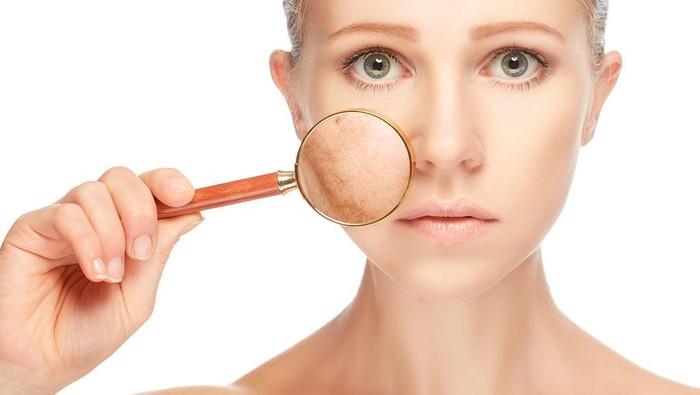 Saat cuaca panas, masalah yang umum terjadi adalah kulit kering. Hal ini terjadi karena meningkatnya penguapan air yang berada di dalam kulit sehingga kulit akan terlihat kusam dan bersisik halus. (Foto: iStock)