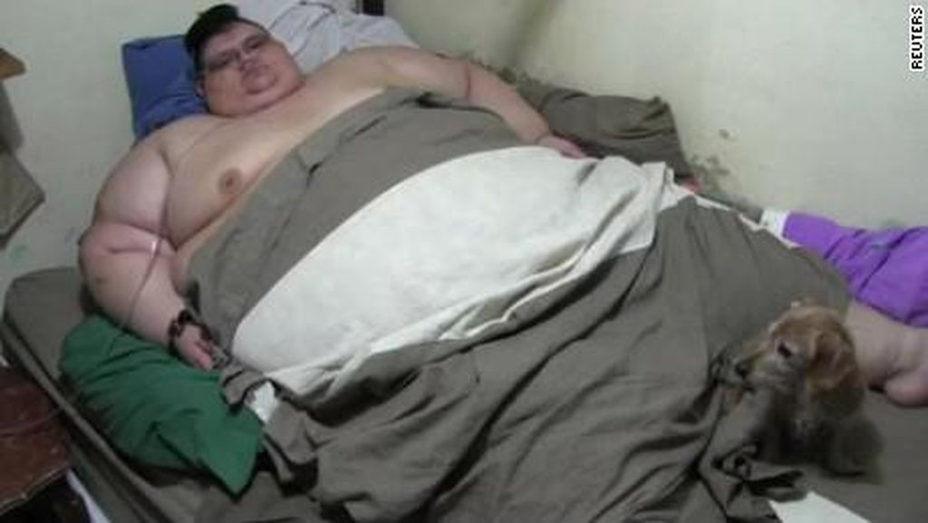 Terberat di Dunia, Pria Ini Obesitas Sampai 595 Kg