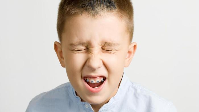 Gigi remaja yang sering bergemeretak saat tidur bisa jadi penanda ada masalah dengan psikisnya. (Foto: ilustrasi/thinkstock)