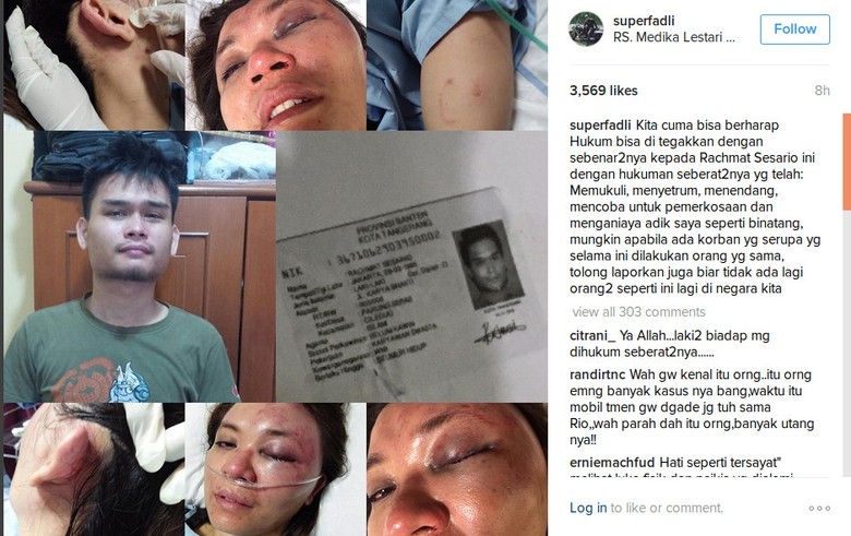 Pelaku Percobaan Perkosaan Adik Fadli-Fadlan Alami Gangguan Jiwa?