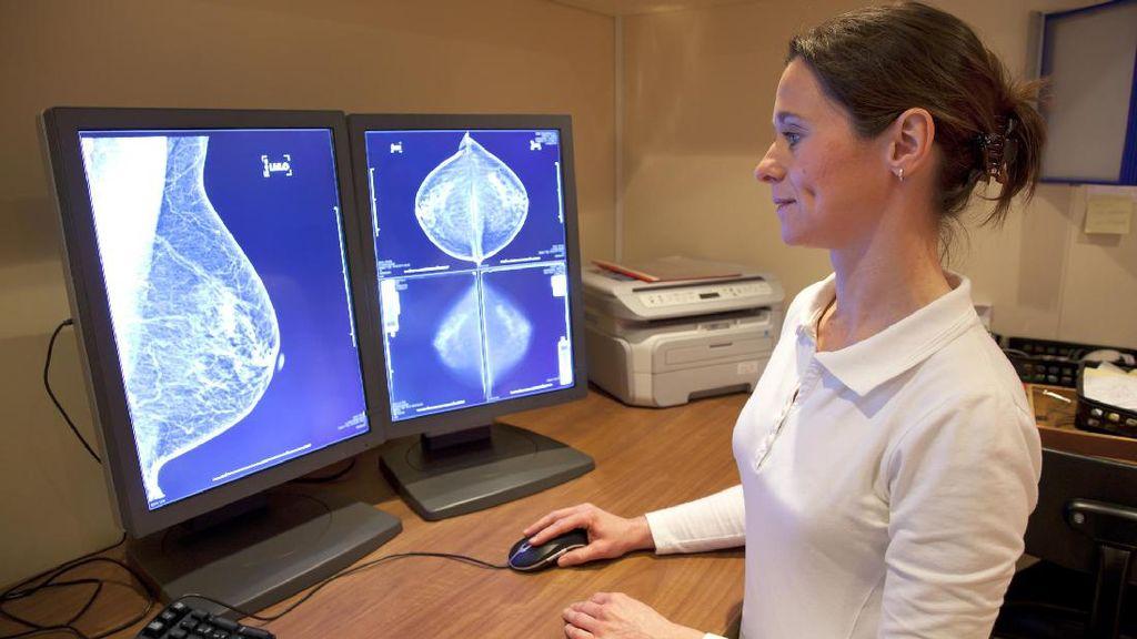 Pentingnya SADANIS untuk Cegah Kanker Payudara