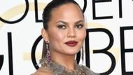 Chrissy Teigen Akui Kecantikannya Palsu, Pernah Botox Hingga Sedot Lemak