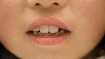 Ajak Anak ke Dokter Gigi Jangan Tunggu Giginya Sakit Ya, Bun