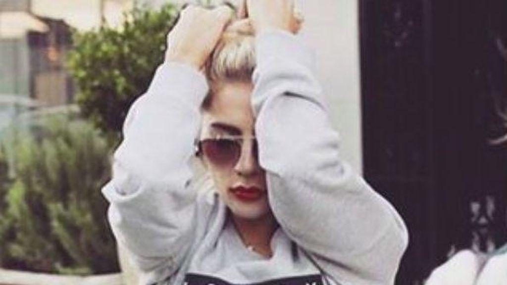Lady Gaga Menunda Konser Karena Terserang Laringitis