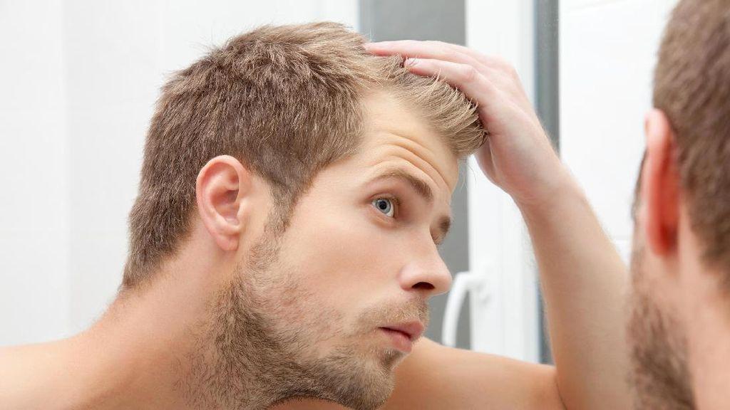 6 Efek Buruk Stres Pada Rambut