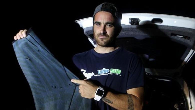 Gonzalo menunjukkan bekas gigitan hiu di wetsuitnya (Gonzalo Fernandez/Facebook)