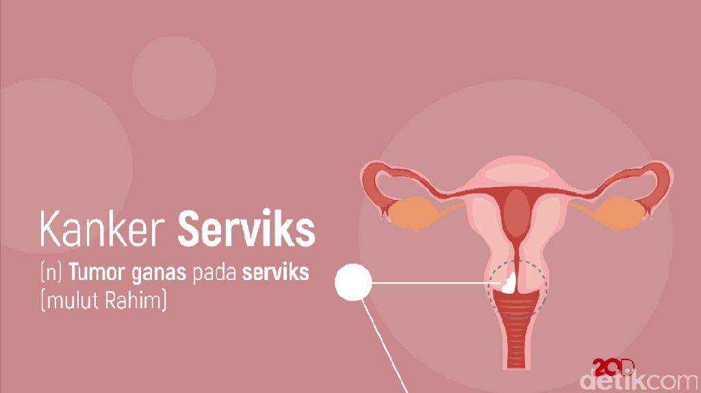 BPJS: Deteksi Kanker Serviks, Pap Smear dan IVA Gratis!