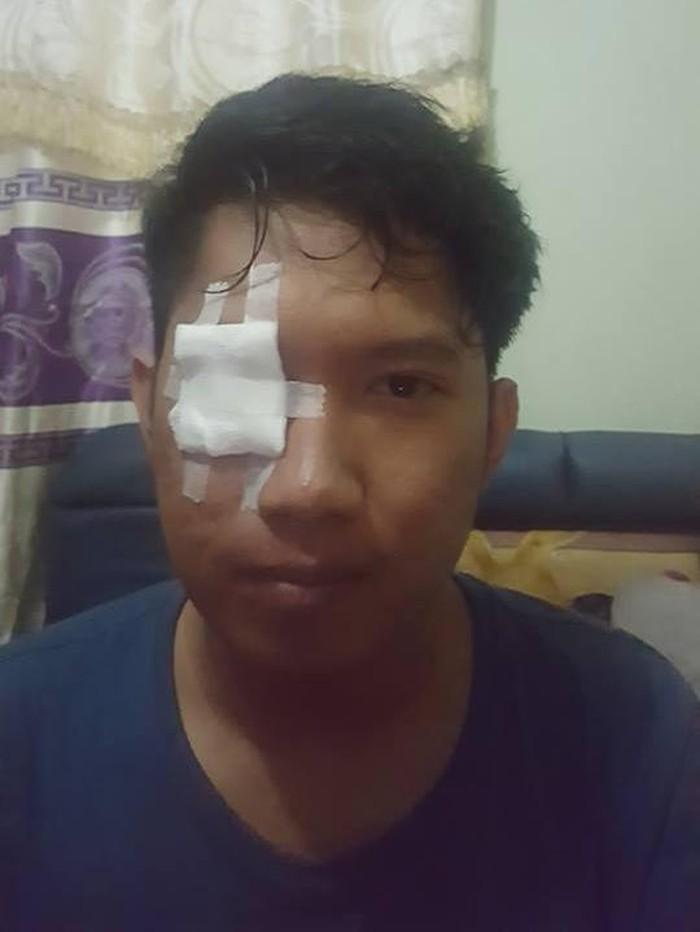 Mata kanan Rendhy mengalami iritasi berat dan harus diperban. (Foto: Facebook/Rendhy Maulana)