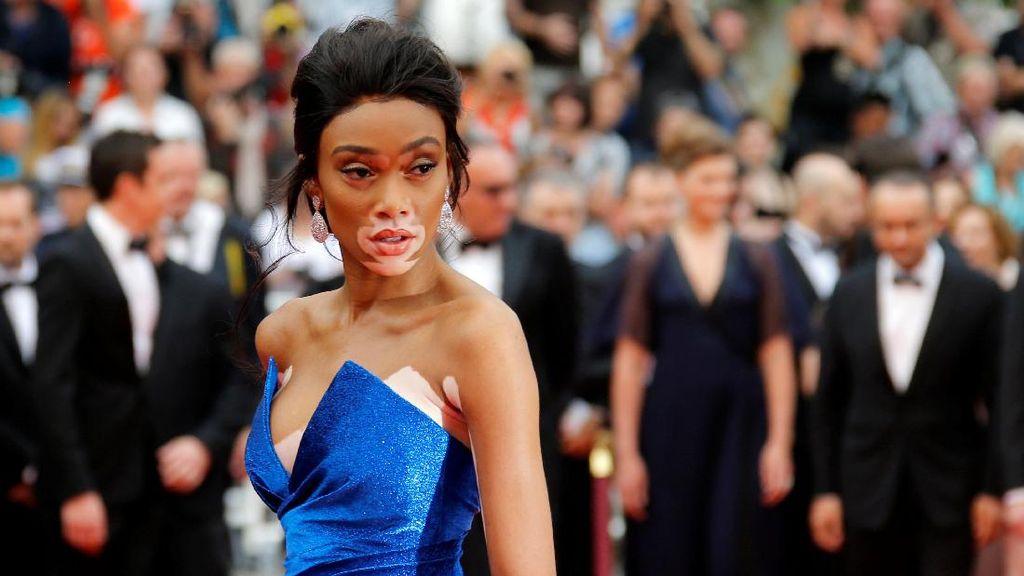 10 Perempuan Unik yang Berani Mendobrak Standar Kecantikan Dunia