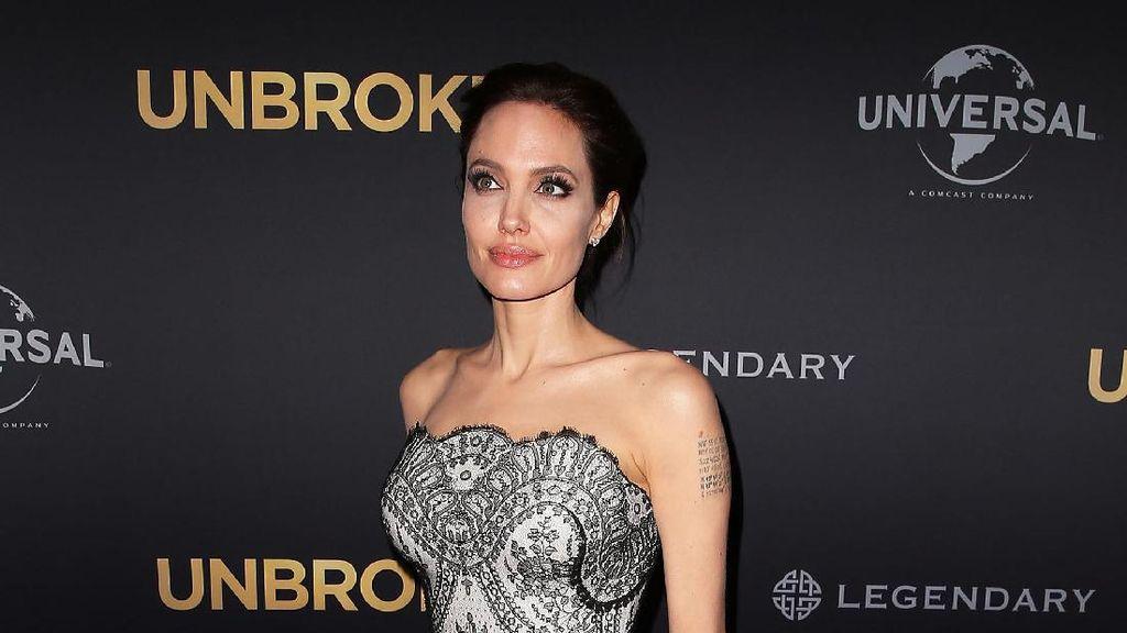 Wanita Iran 50 Kali Operasi Plastik demi Mirip Jolie, Tapi Hasilnya...