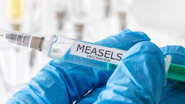 Bingung soal anak yang masih kena campak padahal sudah vaksinasi? Simak penjelasan dokter spesialis anak berikut ini. (Foto: ilustrasi/thinkstock)