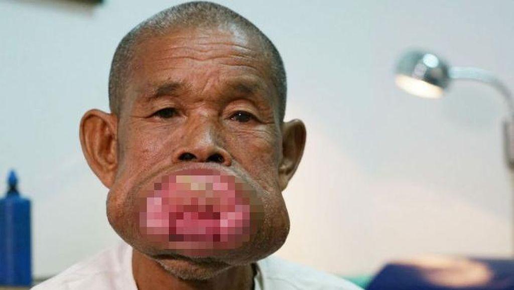 Tumor Penuhi Mulutnya, Begini Potret Kondisi Petani Miskin dari Vietnam