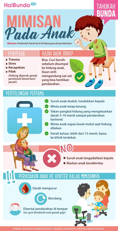 Fakta seputar mimisan pada anak/ Foto: Infografis