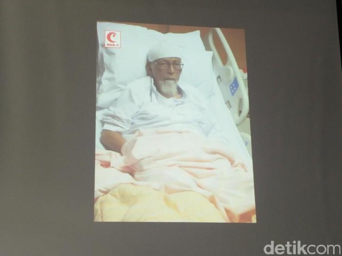 Abu Bakar Baasyir idap chronic venous insufficiency. Foto: Dok. Tim Kesehatan MER-C