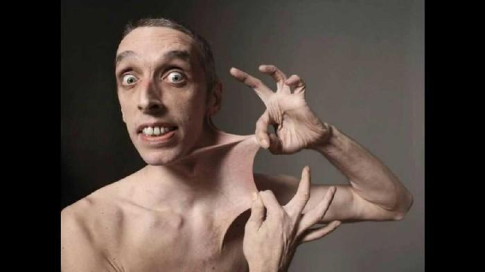 Garry Turner punya kemampuan unik dengan kulitnya bisa ditarik hingga sejauh 15.8 cm. Kondisinya ini dikenal dengan nama Ehlers-Danlos Syndrome yang membuat kolagen menjadi rusak dan mengakibatkan elastisitas kulit yang tinggi serta hipermobilitas sendi. Foto: Youtube