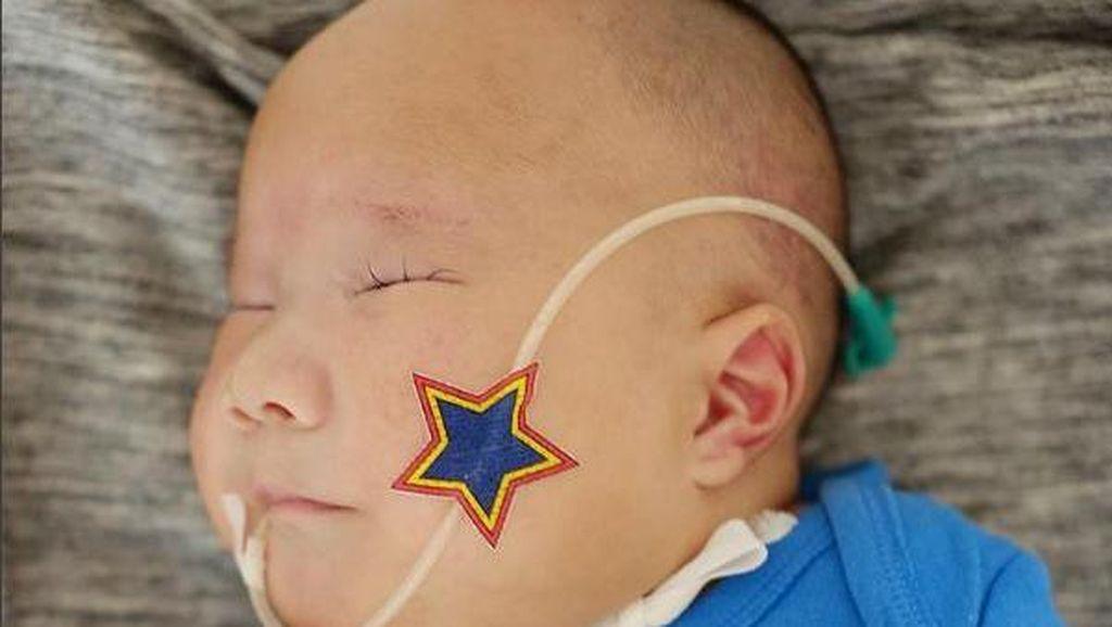 Adam Fabumi, Bayi dengan Trisomy 13 Itu Meninggal