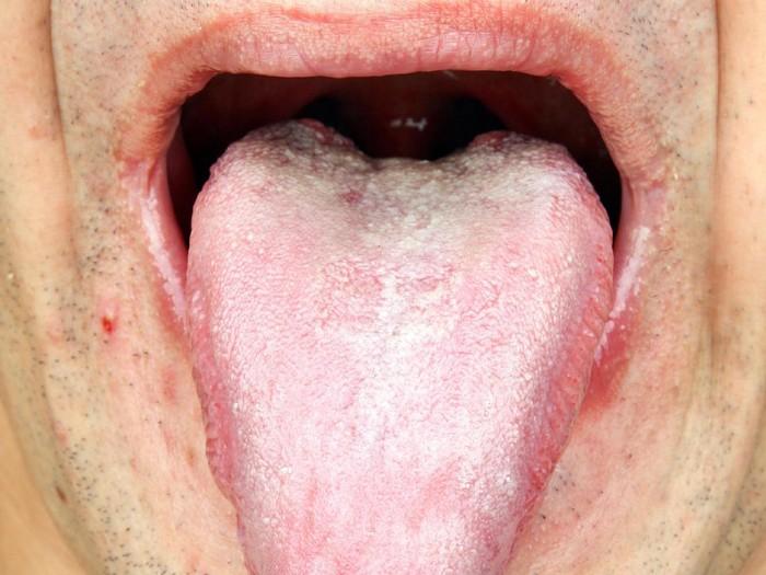 Sariawan di lidah bisa membuat seseorang jadi sulit mengunyah makanan. (Foto: Thinkstock)