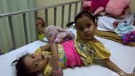 Miliki Kaki Tambahan, Balita Kembar Siam Asal Garut Dirawat di RSHS