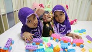 Putri dan Dewi, Bocah Kembar Siam Asal Garut Cerdas dan Periang