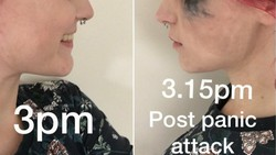 Seorang wanita dari Hull, Inggris, kerap membagikan fotonya ketika diserang depresi. Ia ingin menunjukkan bahwa gangguan mental tidak punya wajah tertentu.