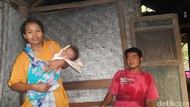 Nisa, Penderita Gizi Buruk di Blitar Hidup di Rumah Tak Layak