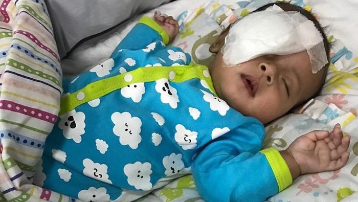 Bayi bisa saja terkena katarak. Foto: instagram
