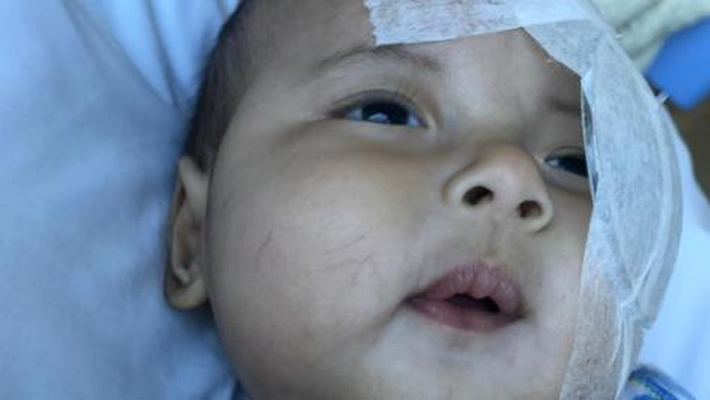 Belum Berusia Satu Tahun Bayi Asri Welas Dioperasi Katarak, Tepatkah?
