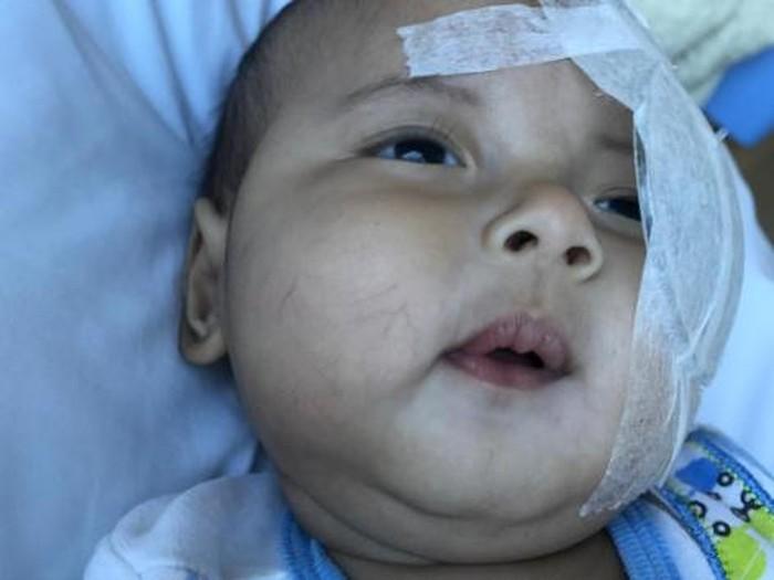 Anak Asri Welas, Ibran, terdiagnosa katarak setelah terlihat bintik putih mencurigakan di matanya. (Foto: Dokumen Pribadi asri_welas)