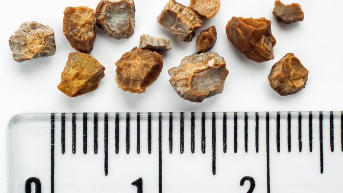 Batu ginjal dapat dikeluarkan dengan berbagai cara. (Foto: Ilustrasi/thinkstock)
