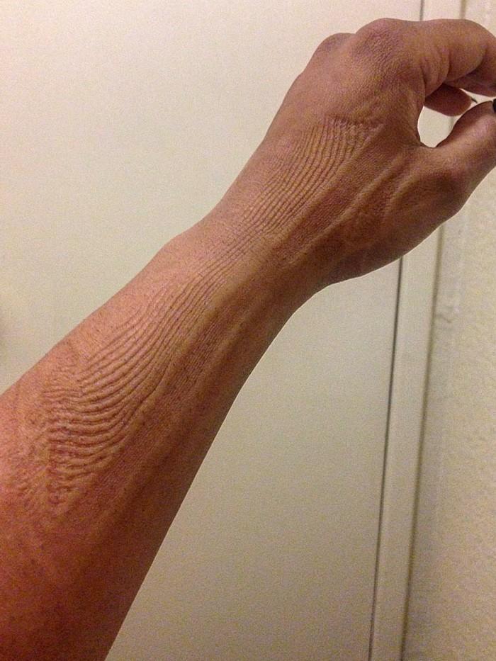 Pola seperti ini terjadi ketika kita menekan kulit cukup lama pada permukaan berstruktur. Biasanya hal ini dilakukan tanpa sengaja saat tertidur dan oleh sebab itu orang-orang menyebutnya sebagai sleep mark. (Foto: Instagram/ippyrox)