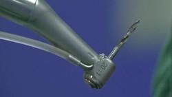 Prosedur pemasangan implan gigi menggunakan robot berhasil dilakukan di Stomatological Hospital, Xian, Cina. Intip foto-fotonya berikut ini: