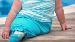 Memakai kostum putri duyung kini disukai banyak anak-anak. Tapi anak-anak ini tak sedang pakai kostum, mereka benar-benar lahir seperti putri duyung.