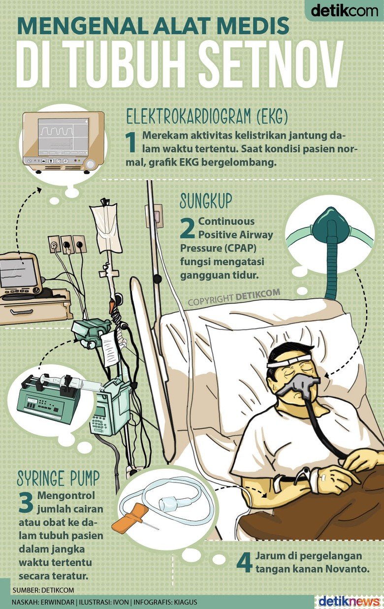 Mengenal Alat Medis di Tubuh Novanto