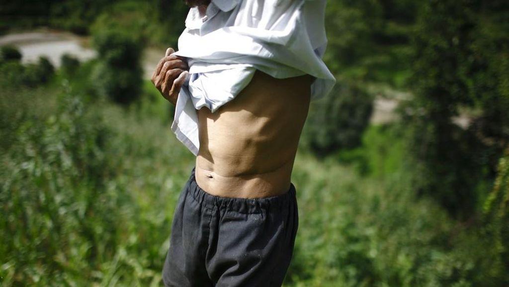Miris! Di Desa Ini, Para Penduduknya Hidup dengan Menjual Ginjal