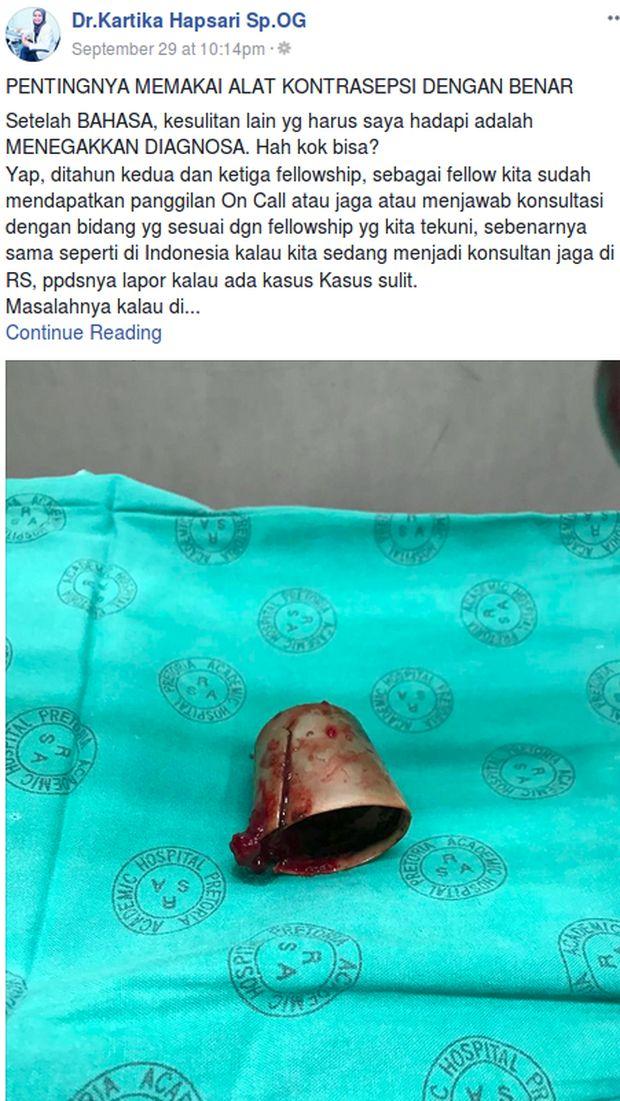 Postingan dr Kartika menunjukkan tutup botol deodoran yang baru diangkat dari vagina pasien.