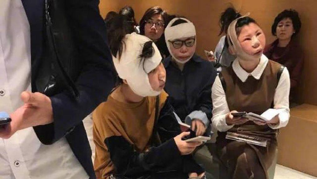Wanita China Jadi Viral Saat Terjebak Lama di Bandara Setelah Operasi Plastik