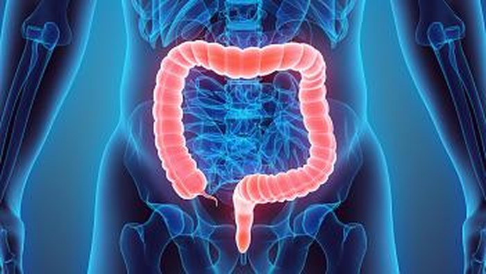 Gejala kanker usus besar sering terabaikan. Foto: ilustrasi/thinkstock