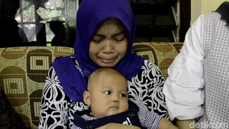 Bayi Pekalongan yang Kehilangan Sekat Hidung Akan Dibedah Plastik