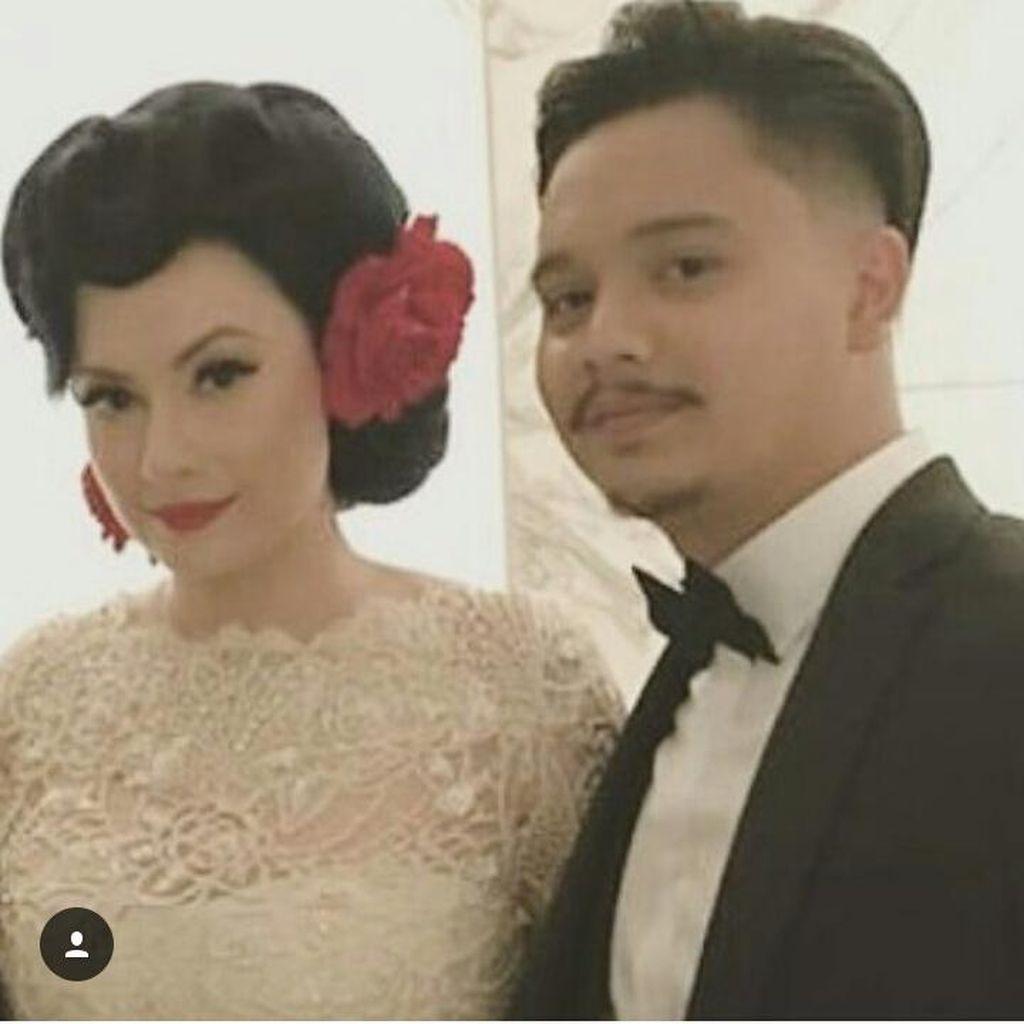 Usai Menikah, Istri Kaget Derby Romero Mendengkur Kencang